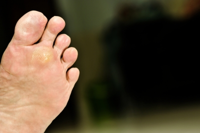 Identifying plantar warts - Are warts contagious in a swimming pool ...